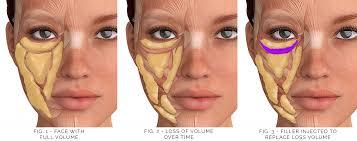 under eye filler chart use