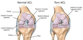 torn acl recovery time