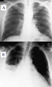 Пневмония Википедия Пневмония при рентгеновском исследовании А здоровые лёгкие В затемнение на правом лёгком светлая область на левой стороне снимка
