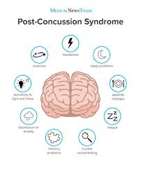 Eye Light Test For Concussion Post Concussion Syndrome Symptoms Treatment And Outlook