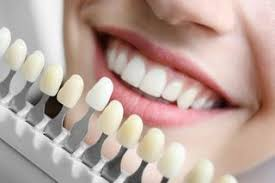 Tooth Colour For Dentures In Victoria Bc Postings Denture