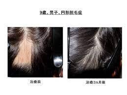 円形 脱毛 症 治療