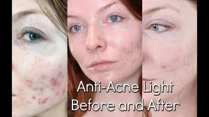 Blue Light Therapy Acne Results Bluemd Light Therapy Review Trophy Skin Before After