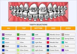 Braces Color Picker Billings Mt Colored Bands Braces Color