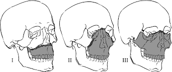 Le Fort Fracture Le Fort Fractures Part 2 Intelligent Dental