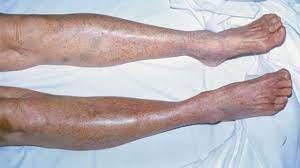 Piastrinopenia autoimmune, cos'è la patologia di Camilla Canepa?