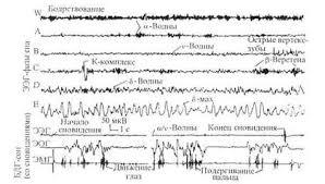 Реферат Сон его биологическое значение механизмы стадии Если даже людей или животных в течение длительного времени лишали БДГ сна а следовательно и сновидений вопреки существовавшим ранее предположениям