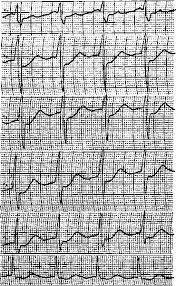 Гипертония диплом ⋆ Лечение Сердца гипертония диплом реферат добавлена