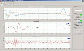 Incoming Signals Infants Respiration And Heart Beating