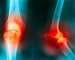 Does Cold Weather Affect Motion Lights Does Cold Weather Affect Arthritis And Joint Pain