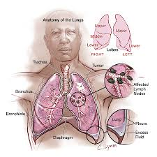 lung cancer cause and effect essay net lung cancer diagram