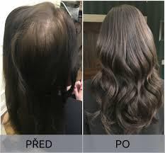 Zahušťování Vlasů Moderní řešení Pro Bohatý Objemprodlužování Vlasů