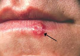 causes of warts or warts on lip