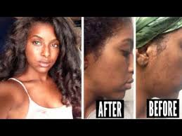 cover acne scars 07 43 skin care routine fade dark marks acne scars how