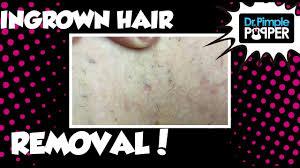 ingrown hair removal