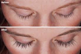 eyelash curler gone wrong. before-and-after photos of a woman who used latisse on her lashes. eyelash curler gone wrong