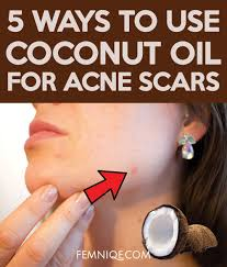 coconut oil for acne scars