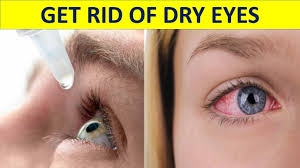 home remes for red eyes how to get rid of dry eyes naturally dry eyes treatment