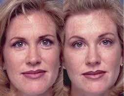 botox to lift eyebrows