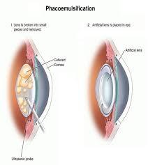 phaco cataract surgery