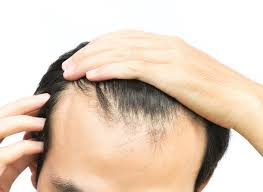hairline lowering surgery the hair