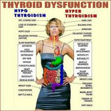 Hyper Chart Thyroid Dysfunction Picture Chart I Guess I Have Both Hypo
