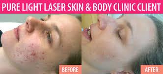 acne scar laser treatment vancouver