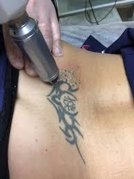 удаление татуировок лазером лазерное удаление татуировок