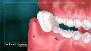 A back molar, an impacted tooth or other complications may cost more than a simple filling for a front tooth. Instructions After Tooth Removal Tooth Extraction Care Instructions