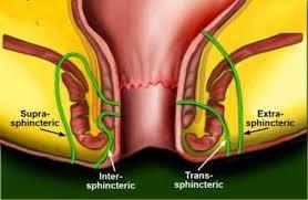 anal fistül ile ilgili görsel sonucu