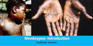 Monkeypox: Introduction