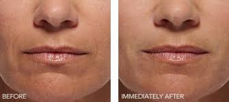 botox laser hair removal west hills ca canoga park