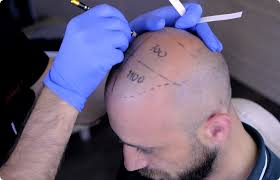 Image result for saç ekimi