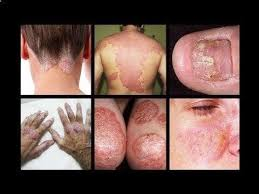 Psoriasis Revolution - Psoriasis Revolution - How To Heal Psoriasis ...