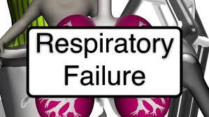 「respiratory failure」の画像検索結果