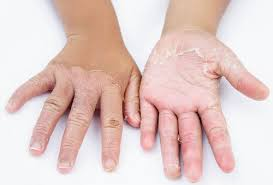 Contact Dermatitis: allergies or irritation can cause redness or rash