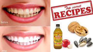 how to remove plaque and tartar from teeth naturally