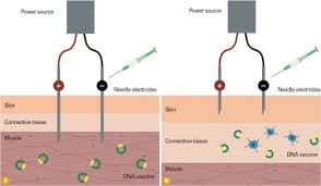 Different Electroporation Delivery Devices Schematic V Open I