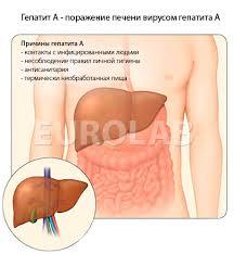 Гепатит А у детей симптомы болезни профилактика и лечение  гепатит а