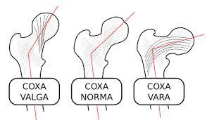 Coxa Vara Coxa Vara Medicine Flashcards Quizlet