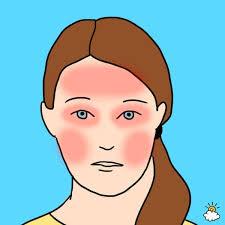 forehead eyes and cheeks headache