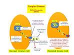 tangier disease