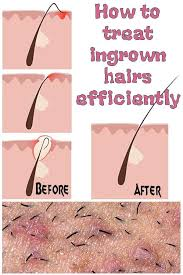 how to treat ingrown hairs efficiently ingrown hair remes ingrown hair removal ingrown hair