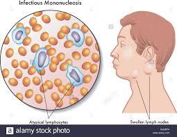 Vettore Illustrazione medica dei sintomi della mononucleosi infettiva  Immagine e Vettoriale - Alamy