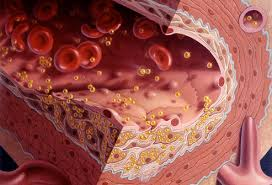 Image result for high cholesterol symptoms