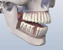 dental implants houston tx oral surgery sugar land wisdom tooth dental implants in houston and sugar land