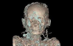 Healthcare Ge Scanner Pulse Of Night - A In Museum Out The Ct Mummies