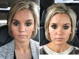 How Long Does Botox Last Botox Fillers Before And After A Cup Full Of Sass