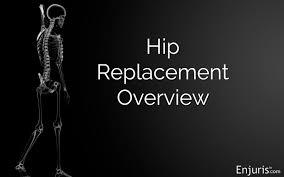 hip replacement surgery types