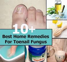 10 best home remes for toenail fungus